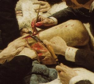 Thomas Cowperthwait Eakins - The Gross Clinic (detail)